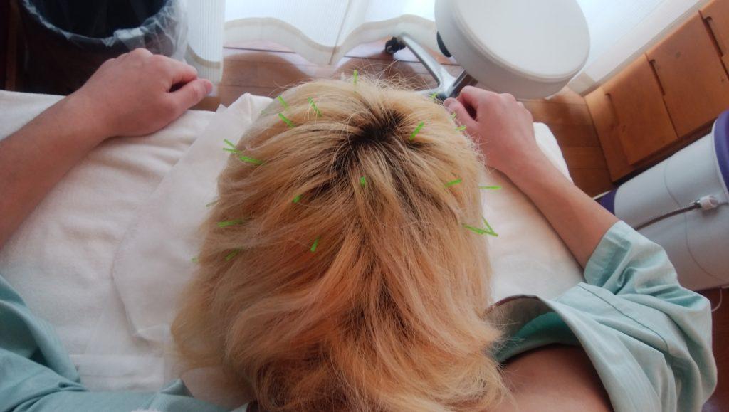 鍼施術の画像