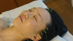 美容鍼の画像